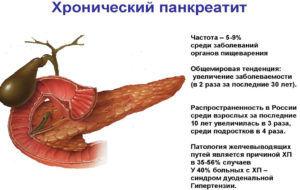 Лекарства применяются при хроническом панкреатите