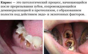 Кариес является одной из важных причин появления горечи во рту