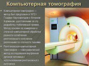 Один из методов исследования является компьютерная томография