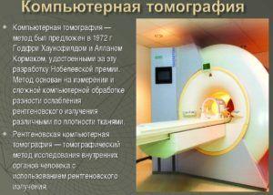 Компьютерная томография проводят для диагностирования калькулезного панкреатита