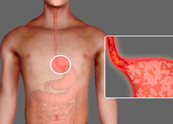 Лечение пищевода