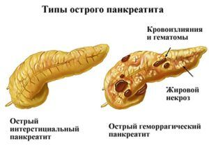 Острая форма панкреатита