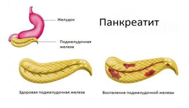 Горечь во рту возникает при панкреатите