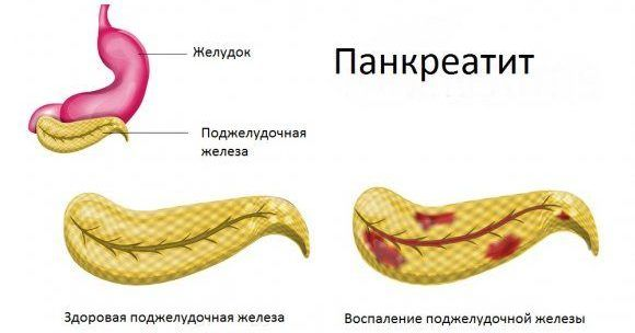 Первичная форма