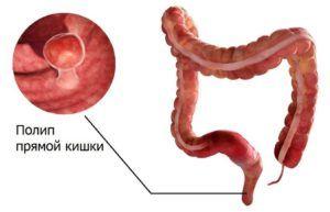 При полипах в кишечнике процедура очистительной клизмой категорически запрещена