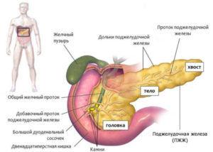 Развитие панкреатита