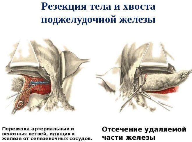Резекция поджелудочной железы