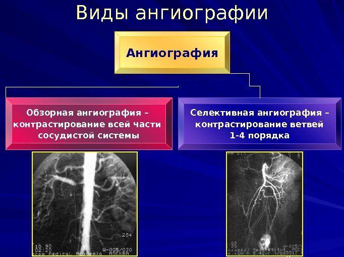 Селективная ангиография
