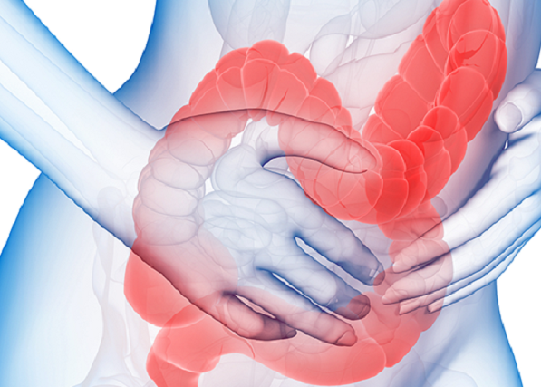 Синдром раздрожонного кишечника