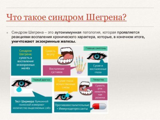 Сухость во рту является признаком синдрома Шегрена