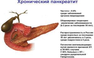 Сыр при хроническом панкреатите