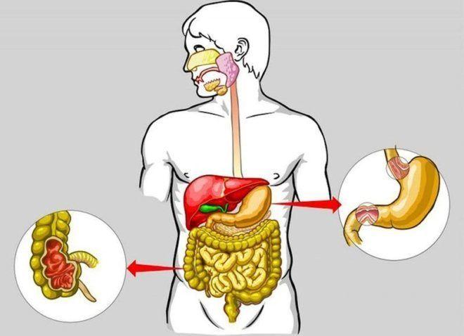 Заболевания пищеварительной системы может спровоцировать появление отрыжки