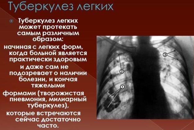 При туберкулез запрещено использовать гепатромбиновую мазь