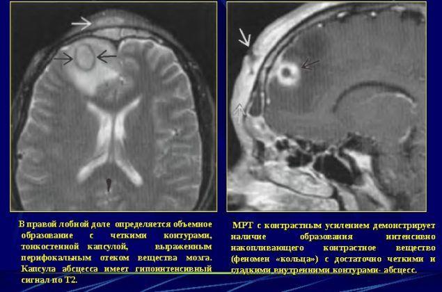 Амебиаз головного мозга