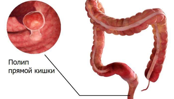 Аномалия слизистой оболочки прямой кишки