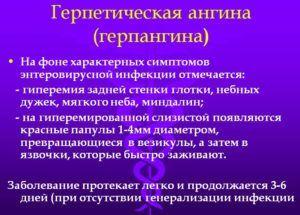 Герпангина