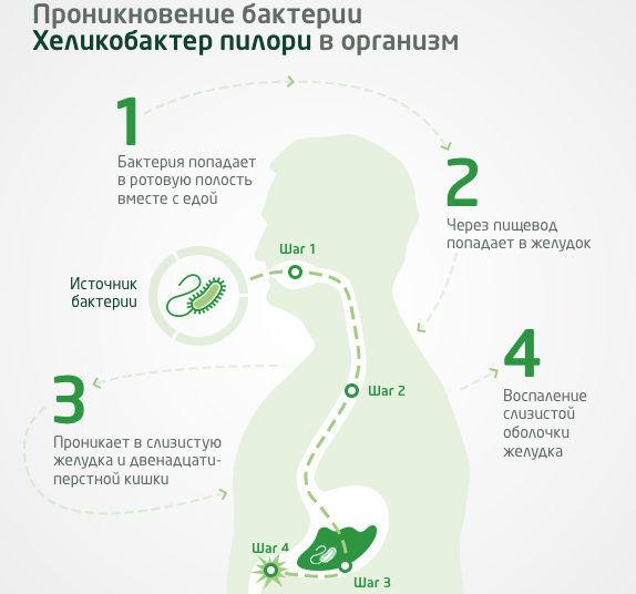 Хеликобактерное инфицирование