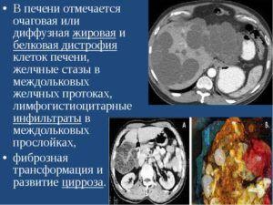 Кардинальный фиброз