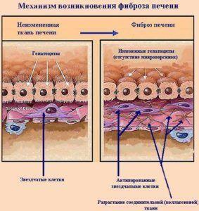 Классификация врожденного фиброза