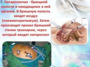 Лапароскопия при ущемлении