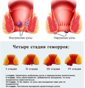 Мазь применяют при начальных стадиях геморроя