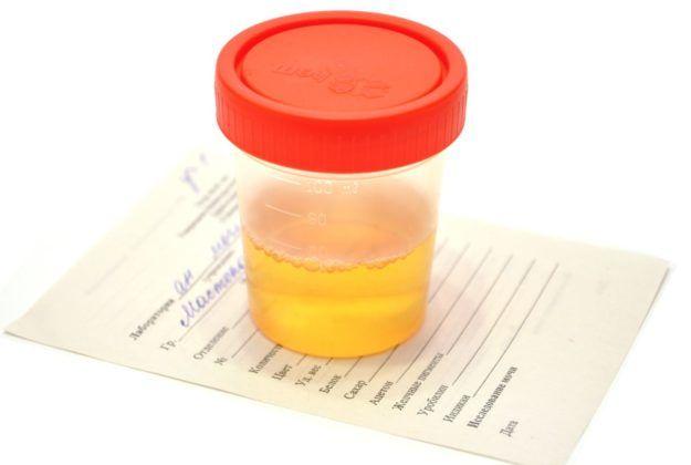 Общий анализ мочи для диагностики ротавируса у беременных