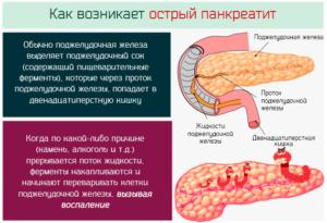 Груша при остром панкреатите