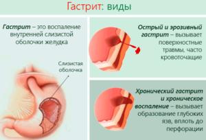 При острых приступах гастрита стоит применить фиброгастроскопию