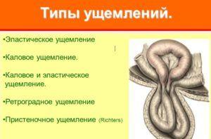Разновидности ущемления пупочной грыжи