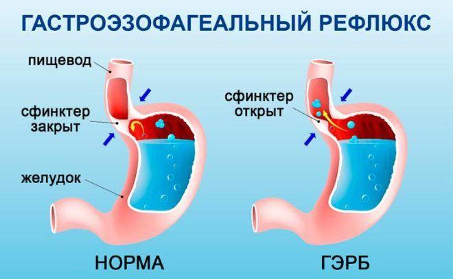 Сфинктер между желудком и пищеводом полностью открыт