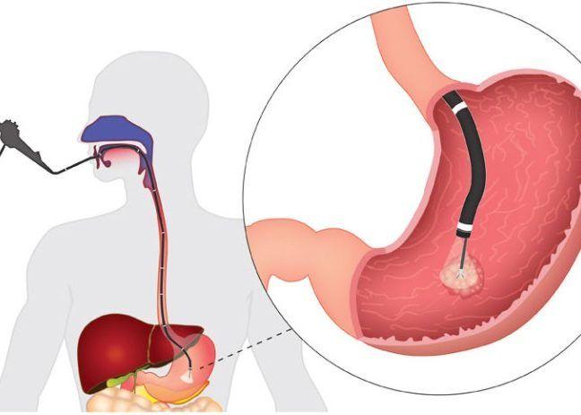 Фиброгастродуденоскопия