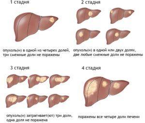 Несвоевременное лечение холестаза приводит к циррозу печени
