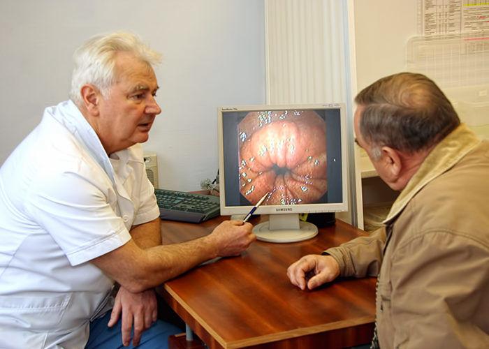 Ректоскопия