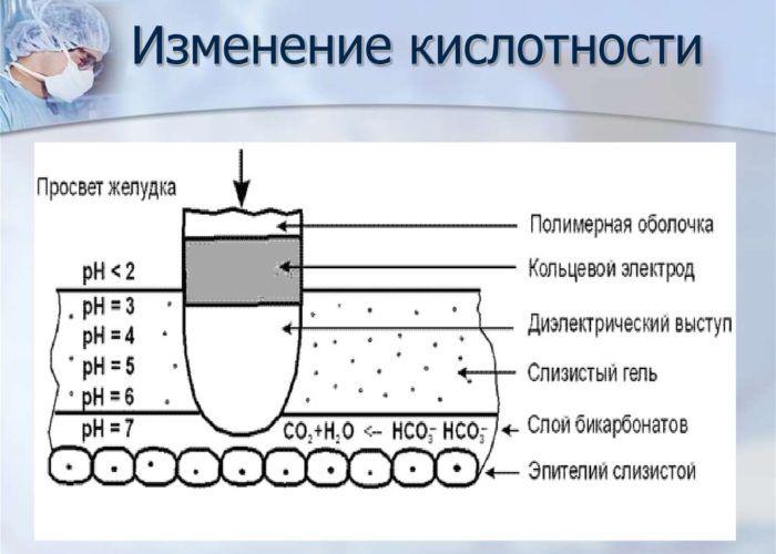 Суточный мониторинг кислотности в верхних отделах пищеварительного тракта