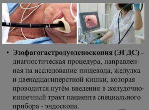 ЭГДС желудка
