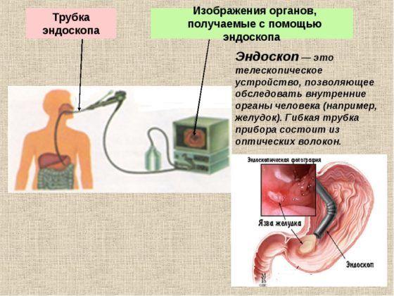 Эндоскоп при инородном теле в организме