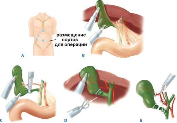 Ход операции лапароскопии желчного пузыря