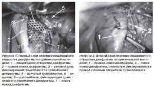 Лапароскопия грыжи пищевода