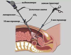 Лапароскопия при раке прямой кишки