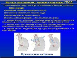 Лечение грыжи пищевода