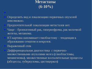 Локализация метастазов