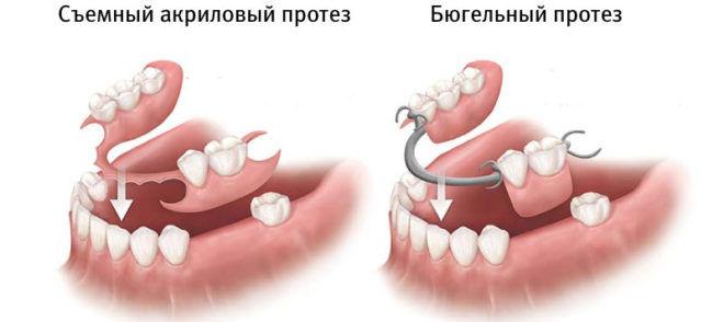 Наличие коронок или зубных протезов