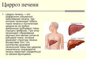 Операция запрещена при циррозе печени