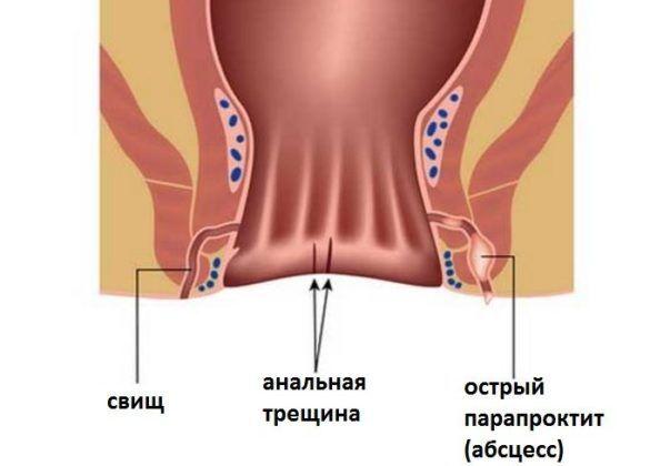 Паропрактит