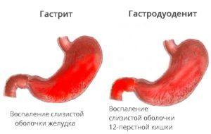Поверхностный гастродуоденит