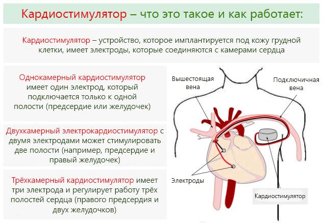 При наличие кардиостимулятора у пациента запрещено проводить операционное вмешательство