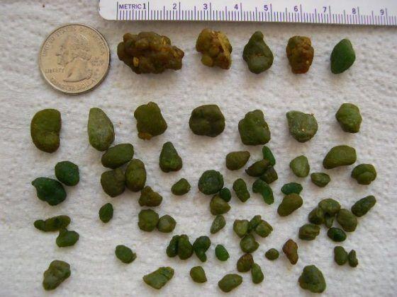 Кристаллические желчных камней