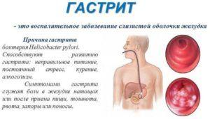 Тяжесть при воспалении желудка