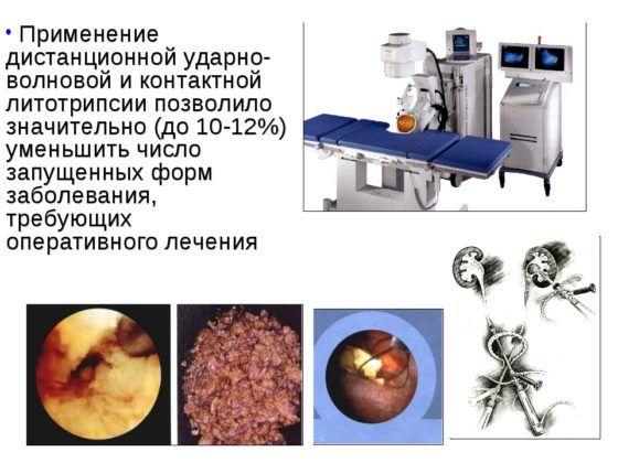 Ударно-волновой литотрипсии