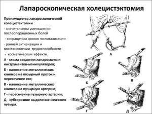 Лапароскопической холецистэктомии